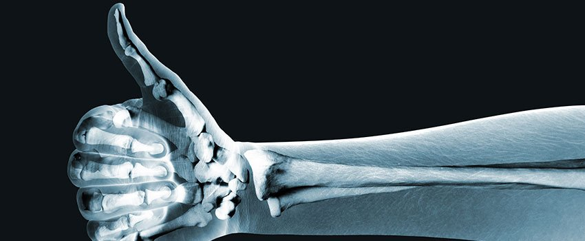 What Do I Need to Know About X-rays?